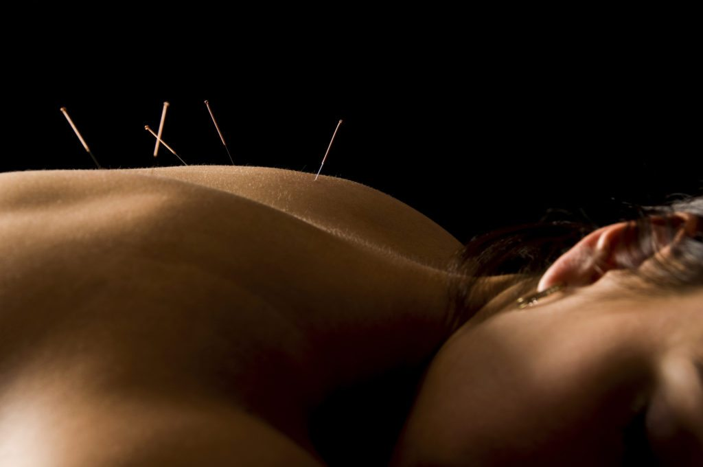 Synergy Chiropractic of Houston Medical Acupuncture and Dry Needling