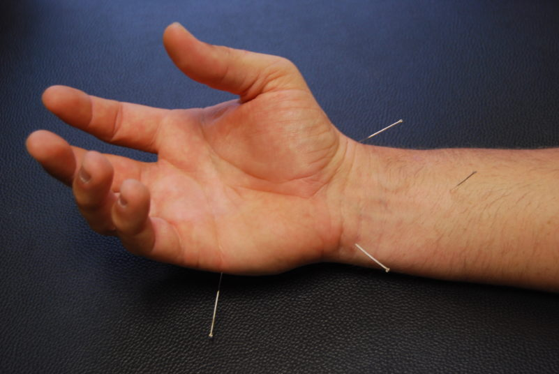 Dry Needling with Hand Pain