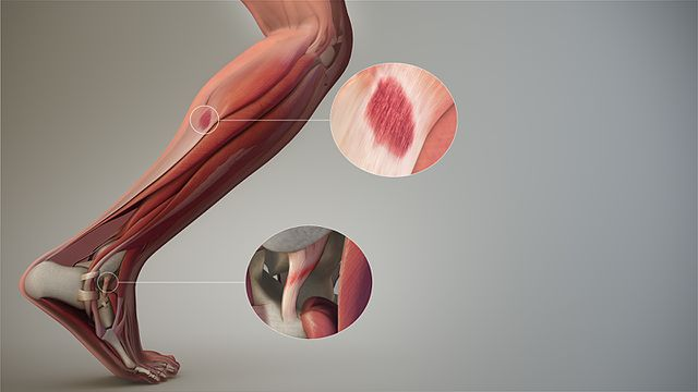 Soft Tissue Muscles that Affect Knee Pain in the Lower Leg